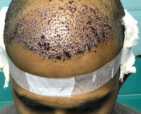 hair transplant patient in iran after surgery photo