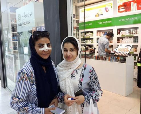 Omani nose job patient in tehran