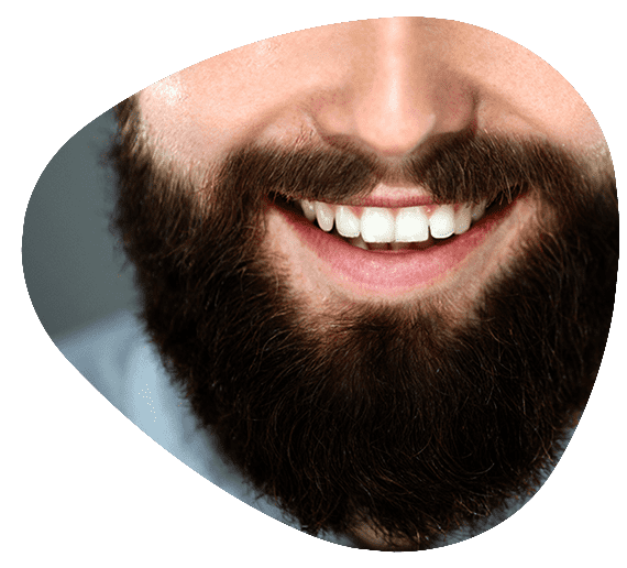 mustache and beard transplant for men in Iran