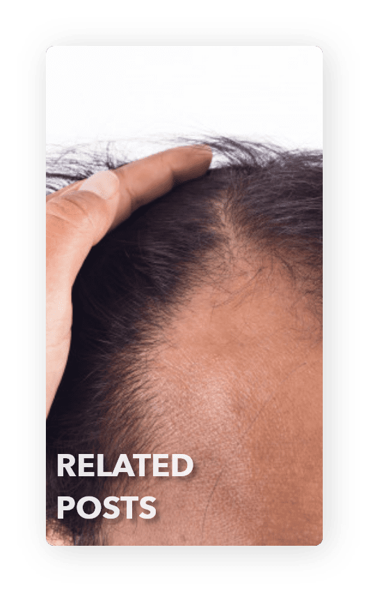 receded hairline and hair loss related posts