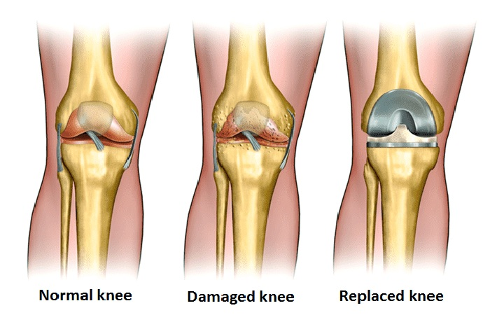 the procedure of a total knee replacement surgery in Iran