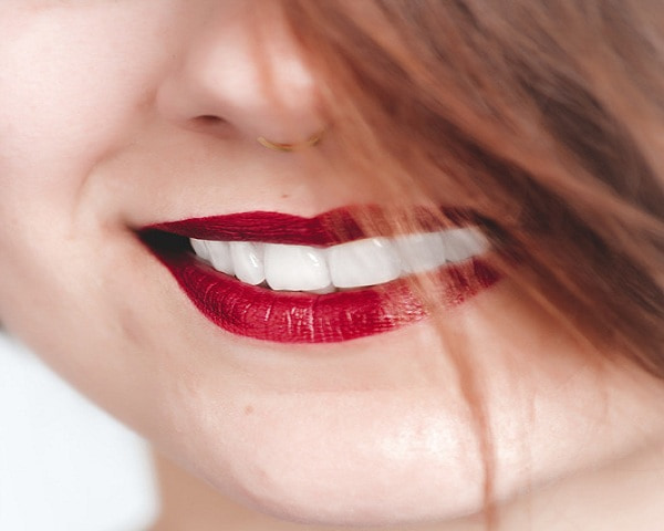 white teeth of a girl after getting dental veneers