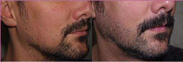 beard transplant in iran before and after