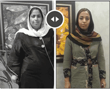 Gastric sleeve in Iran before after