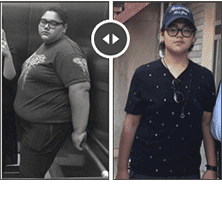 bariatric surgery in Iran before after