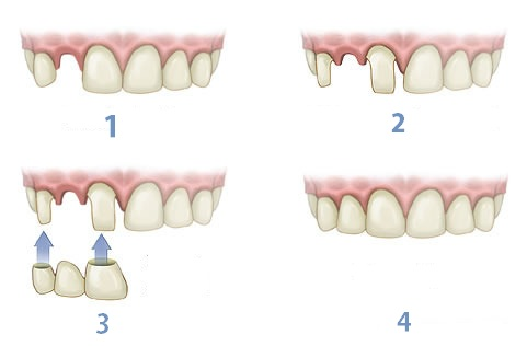 four steps of getting a dental bridge in iran
