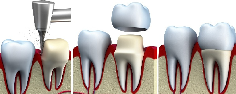 dental crowns procedure in iran step by step