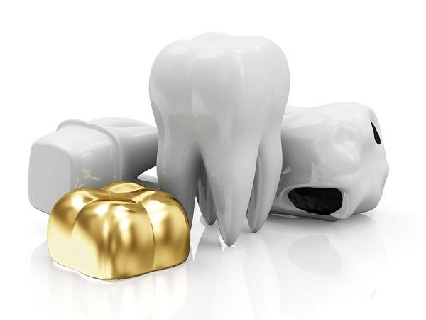 different types of dental crowns made of different materials like gold alloys or porcelain