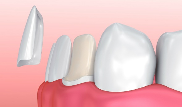 porcelain veneer procedure for a trimmed tooth