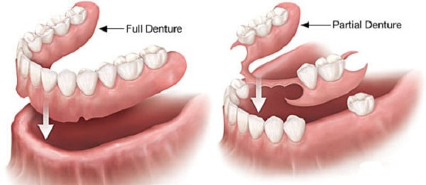 full dentures vs partial dentures