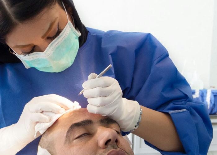 female hair transplant doctor in Iran performing hair transplant on patient