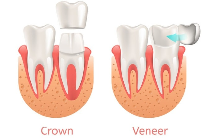 crown vs veneer, the difference between dental veneer and dental crowns