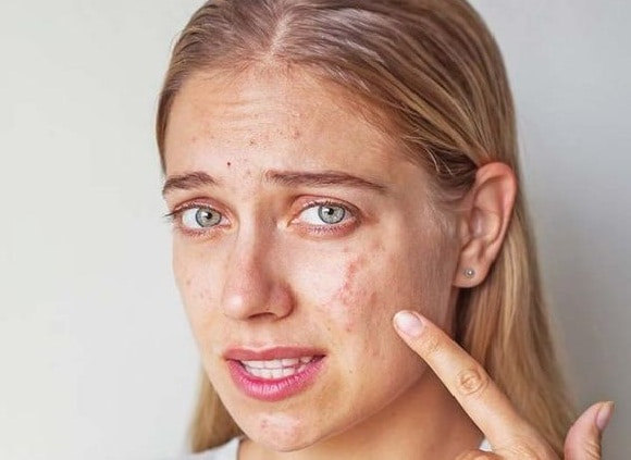 sad girl pointing to her skin with acne and acne scars