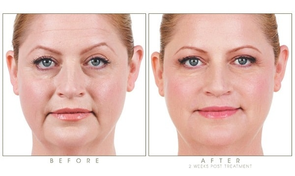 patient getting dermal fillers in Iran before and after photos