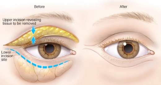 eyelid surgery procedure iran before and after