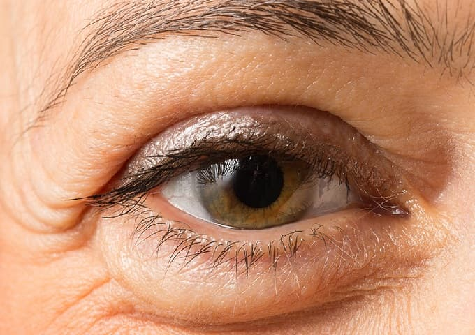 a woman eye with upper loopy eyelid and bags under the eyes
