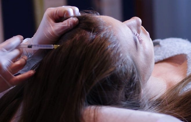patient lying down while receiving PRP injection on her hair in a beauty clinic in Iran