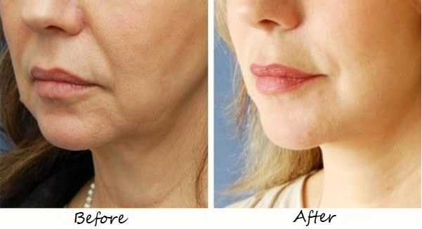 patient getting ultherapy in iran before and after