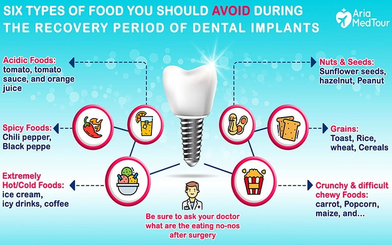 info-graphic for foods to avoid after getting dental implants
