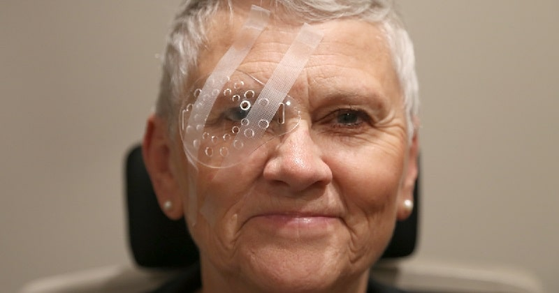 smiling man with a transparent eye shield after cataract surgery