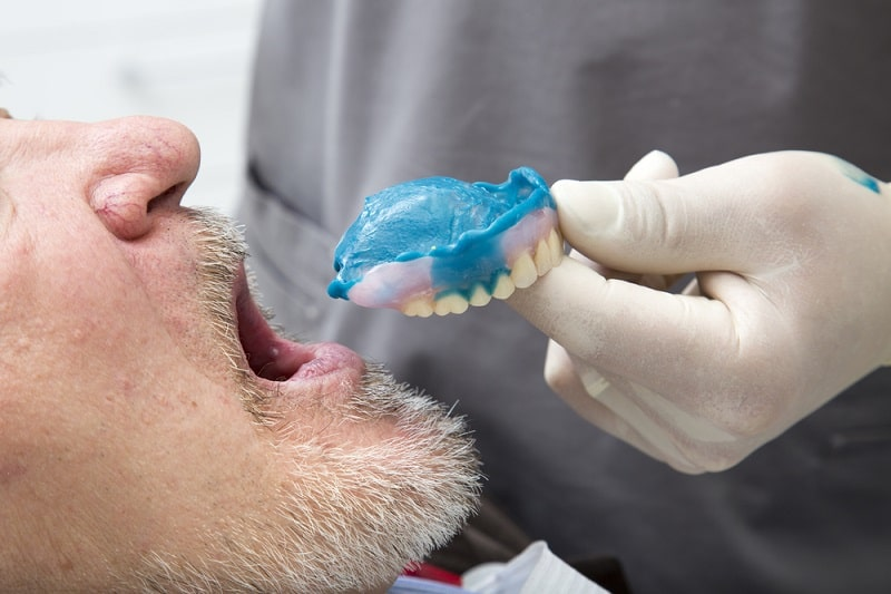 dentist placing a denture with relining material into patient's mouth