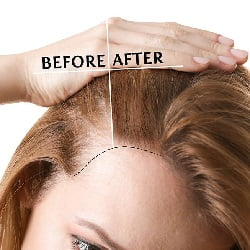 single photo showing before and after hairline lowering