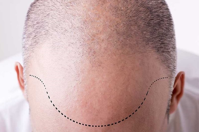 man with dotted line on his forehead showing his to-be hairline after forehead reduction