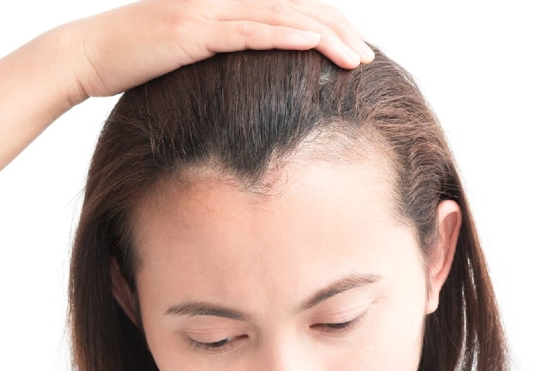 woman pushing up her hair to show her big forehead