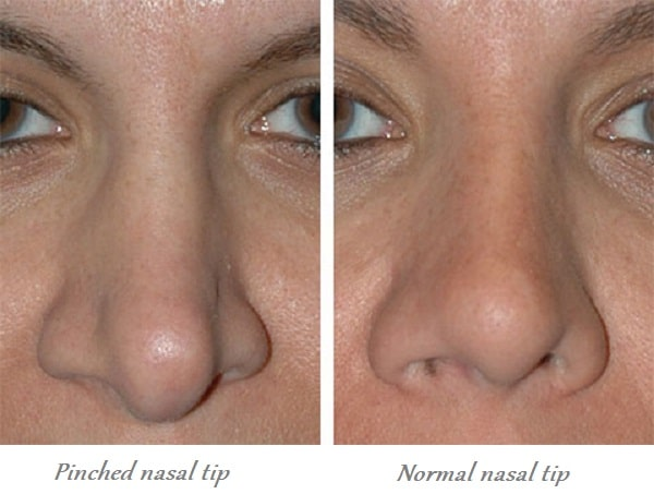 pinched nasal tip vs. normal nasal tip