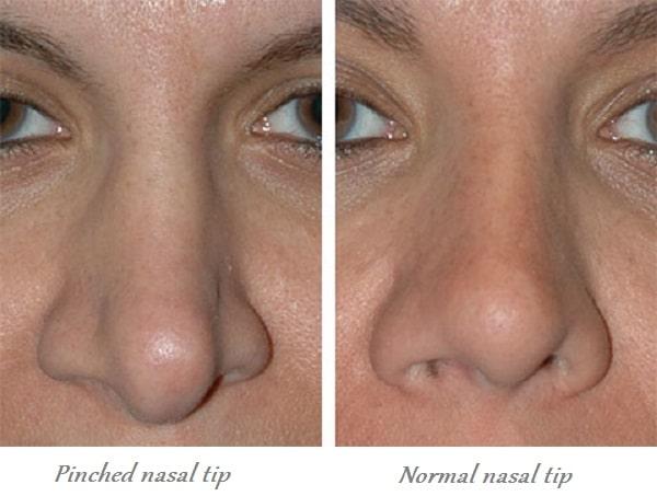 pinched nasal tip vs. normal nasal tip