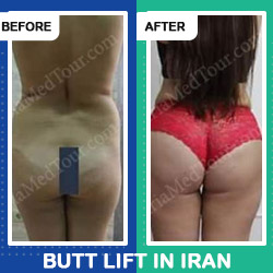 Simple Tips for Quick Recovery from Brazilian Butt Lift