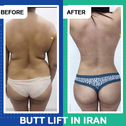 BBL in Iran before after