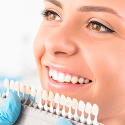 things to know before dental veneers