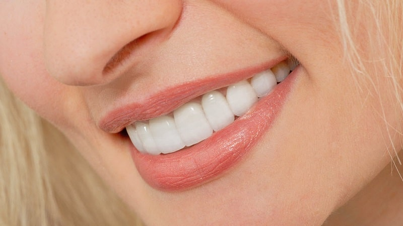smile of a woman with dental veneers