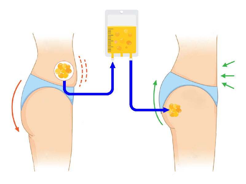 illustration of fat transfer in a Brazilian butt lift procedure