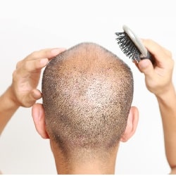 bald man with short hair holding a hair brush