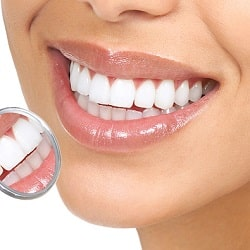woman's smile with dental veneers