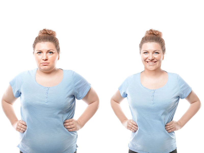 woman before and after weight loss surgery