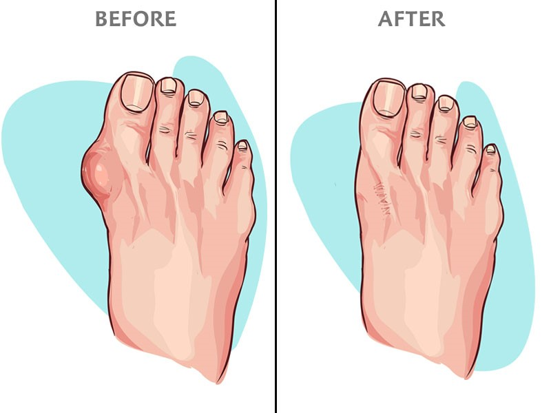 illustration of before and after bunion removal surgery