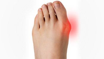 left foot with glowing red big toe side indicating bunion