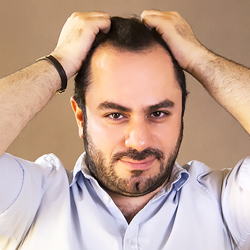 a young man who is holding his hair with his hand indicating that he suffers from hair loss and needs hair transplant and forehead reduction