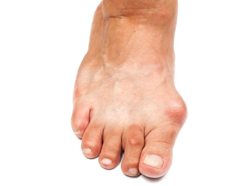 right foot with bunion