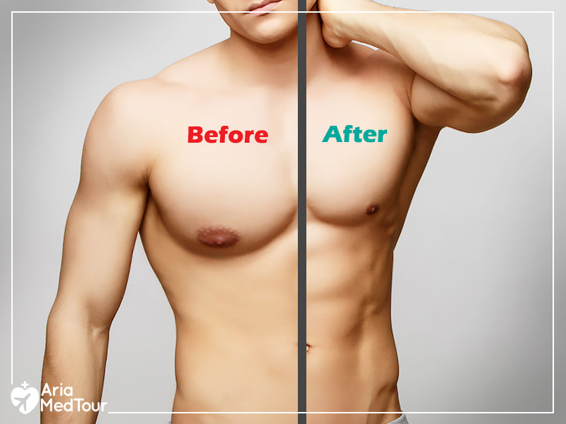 the naked body of a man showing the size of his breasts before and after gynecomastia surgery