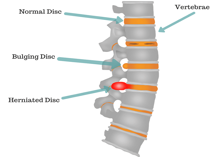 normal disc, bulging disc and herniated disc in the spine