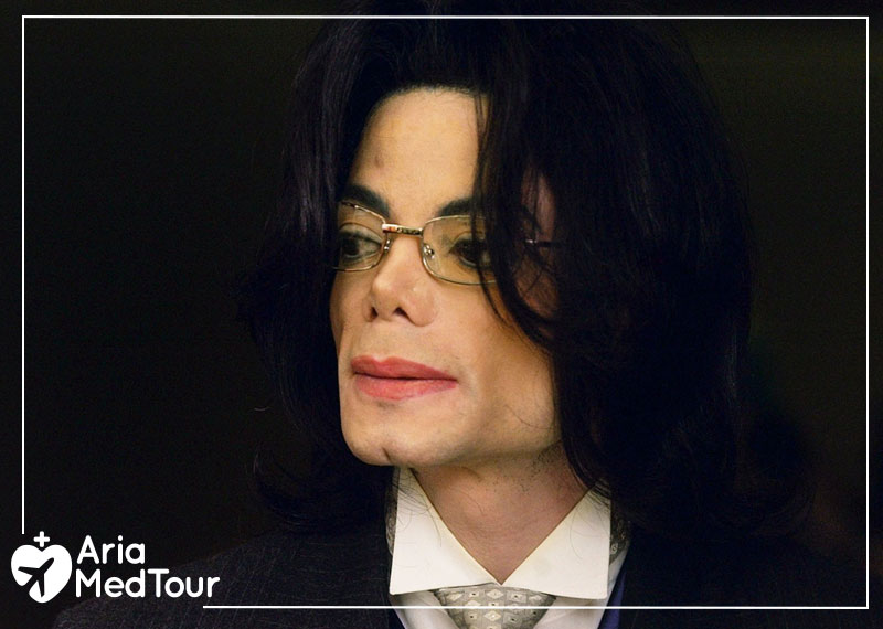 Michael Jackson Nose Job