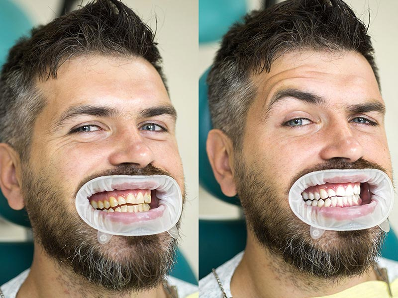 man having teeth whitening mouth guard in place before and after his teeth being whitened