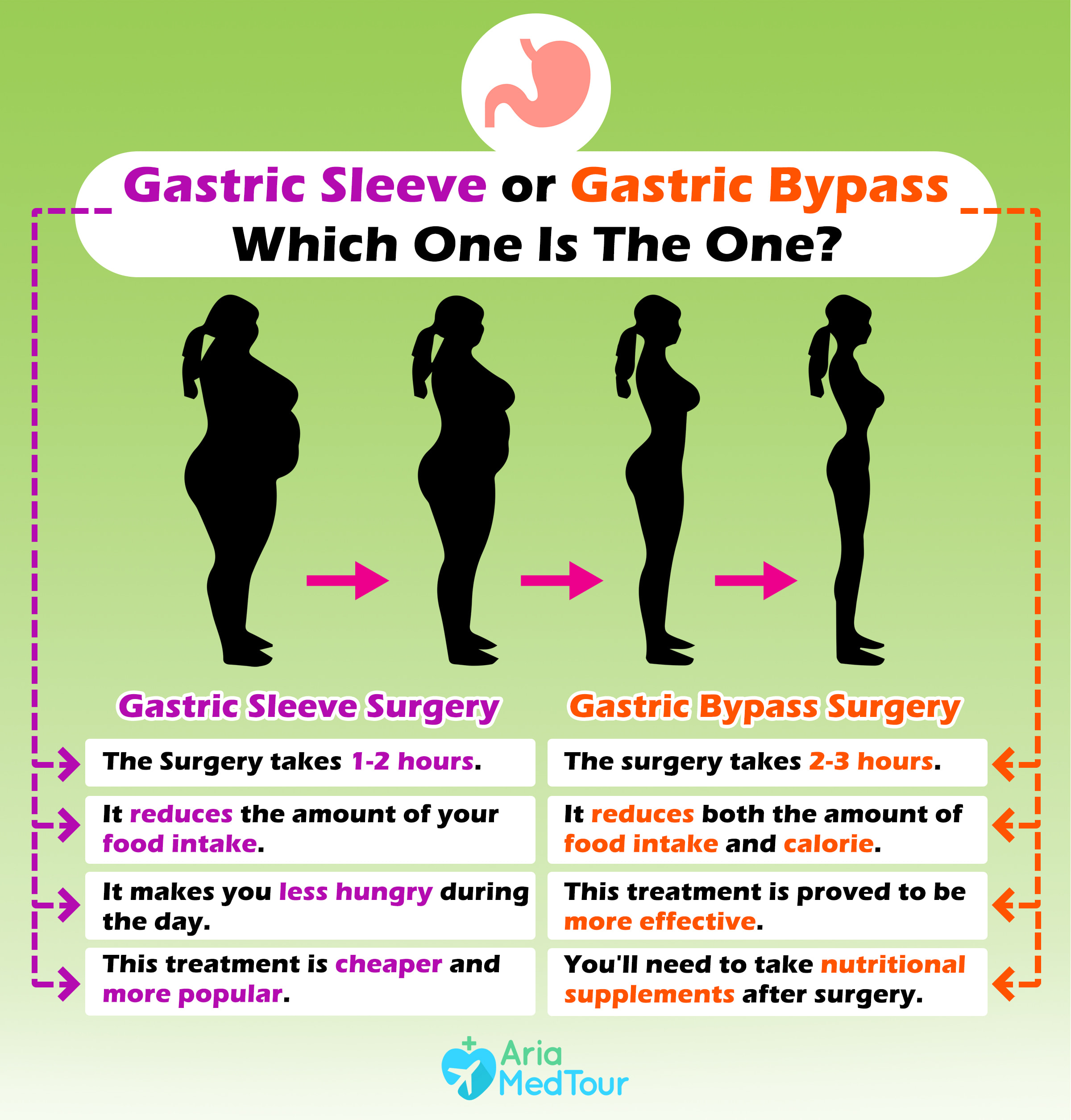 infographic showing gastric sleeve and bypass differences