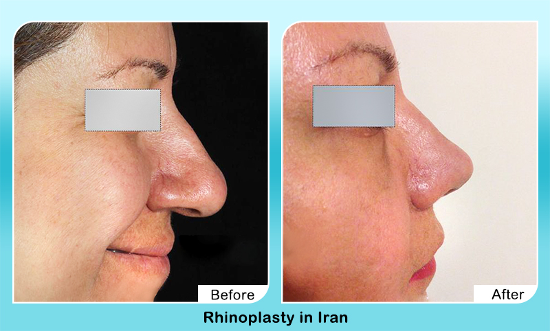 rhinoplasty in Iran before after surgery results on aged woman