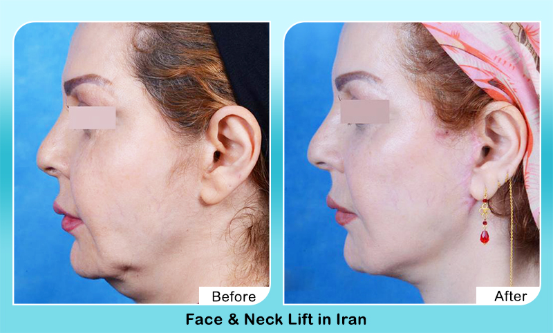 face lift surgery Iran before after