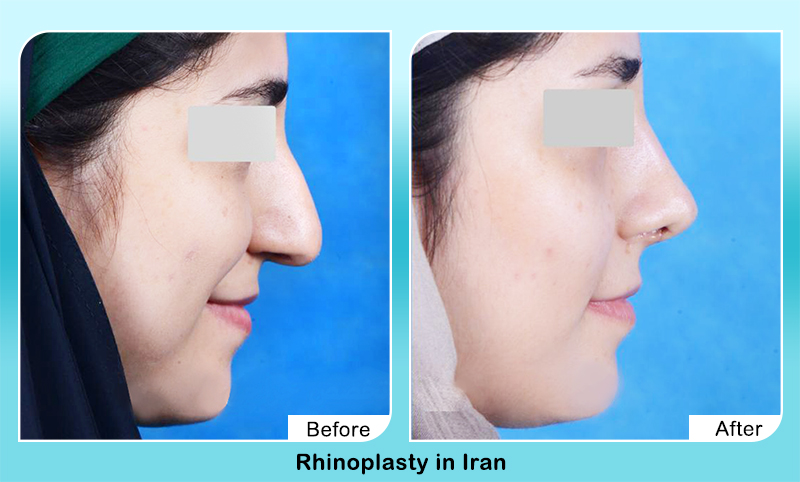 rhinoplasty in Iran before after photots for droopy nasal tip